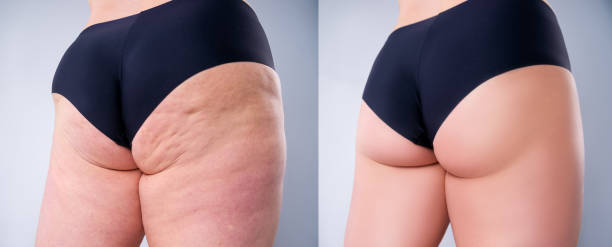 Overweight woman with fat legs and buttocks, before after weight loss concept on gray background stock photo