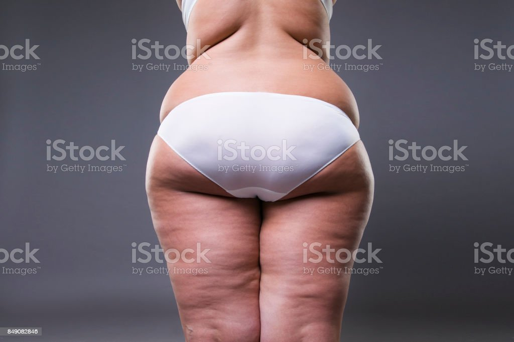 Overweight woman with fat legs and buttocks, obesity female body on...