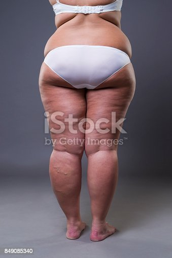 istock Overweight woman with fat legs and buttocks, obesity female body 849085340