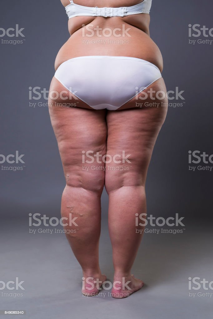 Overweight woman with fat legs and buttocks, obesity female body stock photo