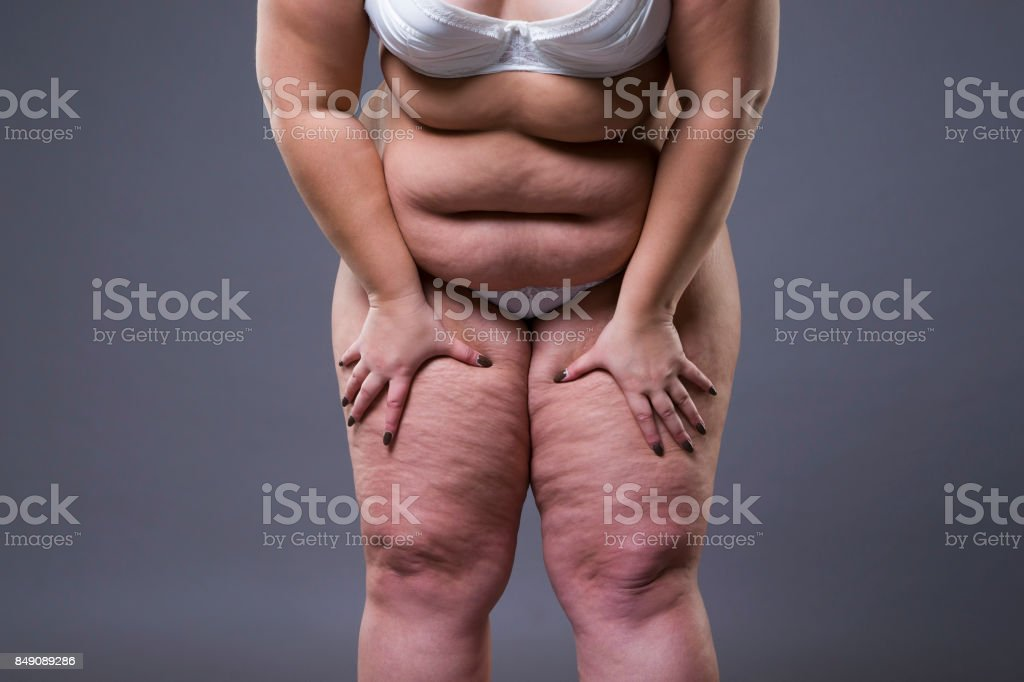 Overweight woman with fat legs and stomach, obesity female body stock photo