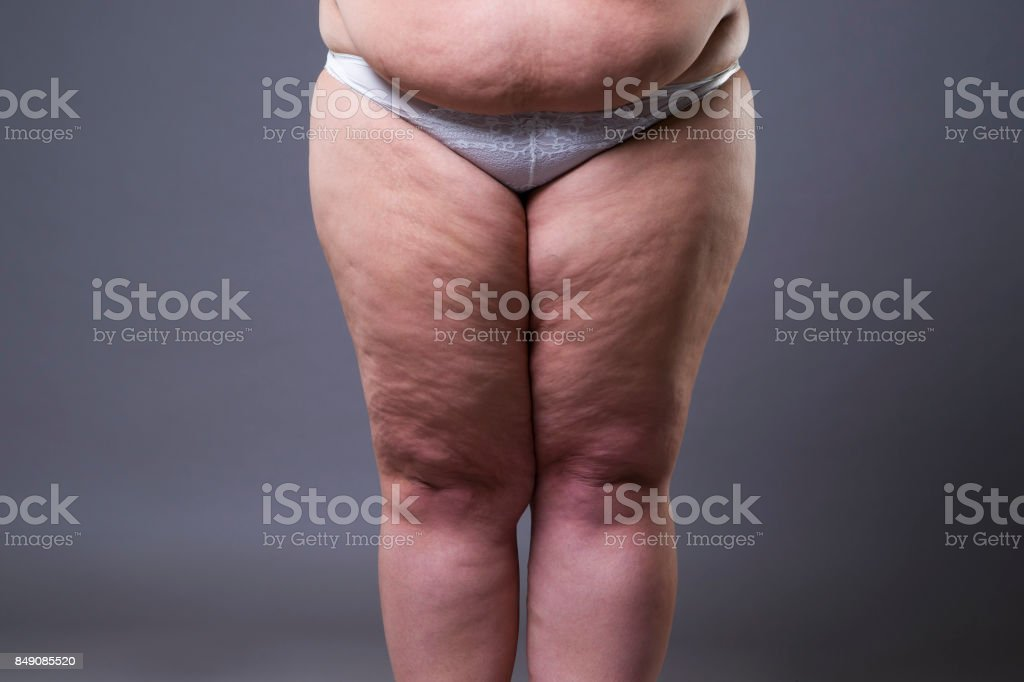 Gross obesity in the female nude — img 5