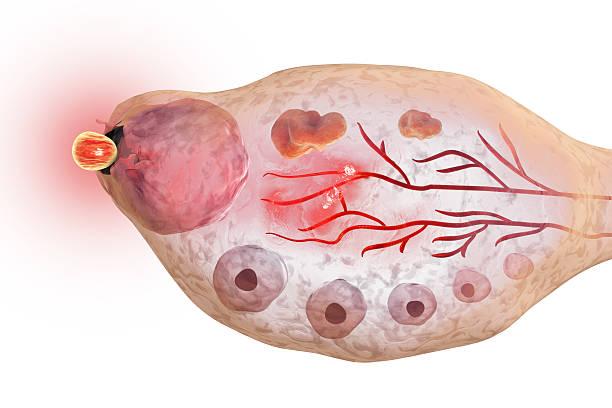 ovulation in female ovary - eierstok stockfoto's en -beelden