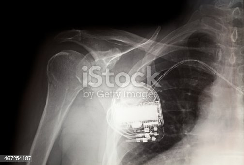 x-ray image of a pace maker or similar device attached to a patient.