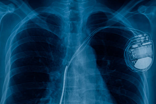 pacemaker cell x-ray image pacemaker cell x-ray image pacemaker stock pictures, royalty-free photos & images