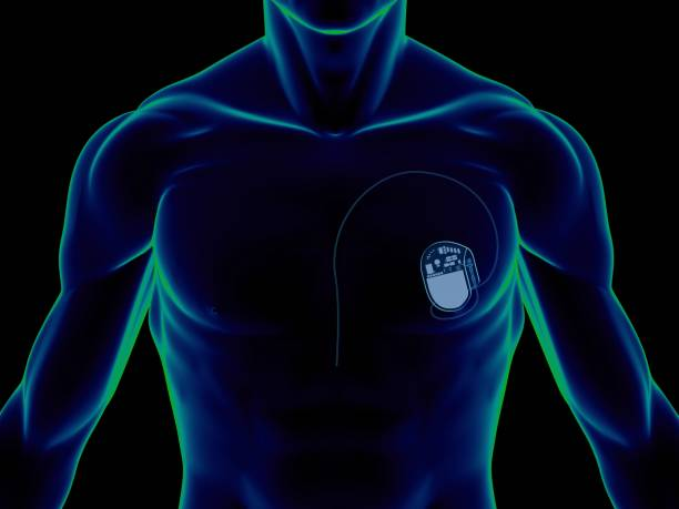 "Pacemaker on chest ""X-ray of a man, showing a pacemaker (for heart) on chest, on front view, great to be used in medicine works and health. Isolated on a black background."" pacemaker stock pictures, royalty-free photos & images"