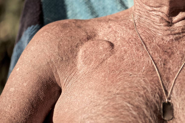 Pacemaker Pacemaker underneath the skin pacemaker stock pictures, royalty-free photos & images