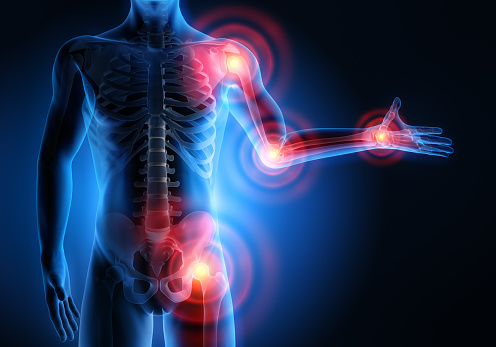 所有關節概念圖稿3d 插圖中的疼痛 照片檔及更多 人工膝關節 照片