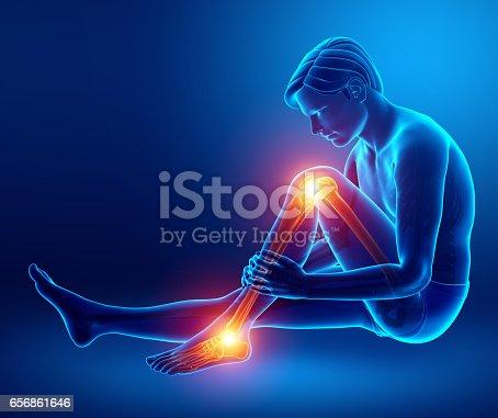 istock Pain in leg 656861646