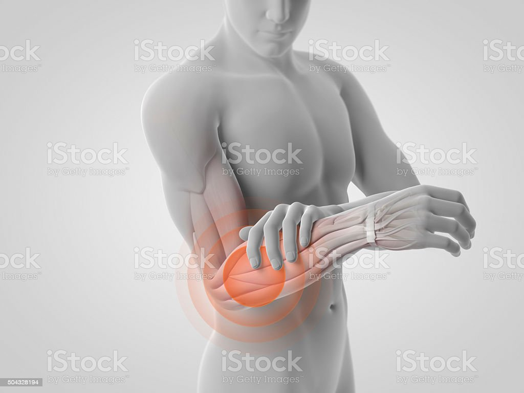 Pain in lower arm and muscles stock photo