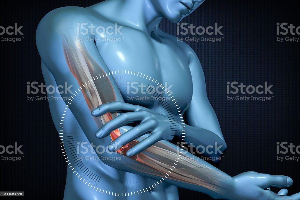 Schmerzen In Den Ellenbogen Anatomischen Vision Stock-Fotografie und ...