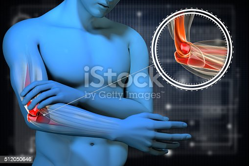 istock Pain in the elbow. Anatomic vision. 512050646