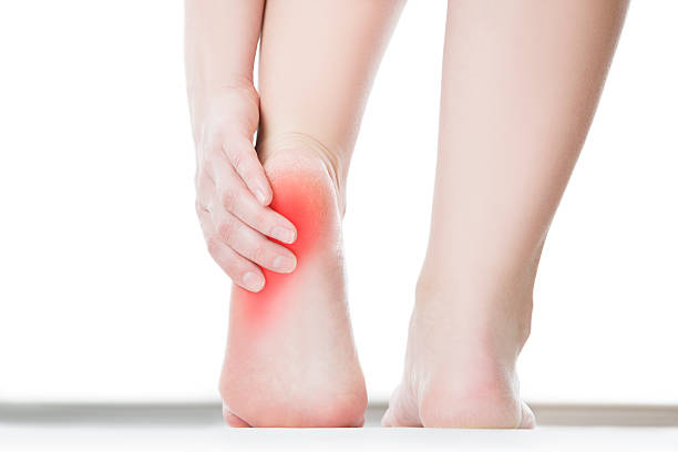 pain in the female foot - human foot stock photos and pictures