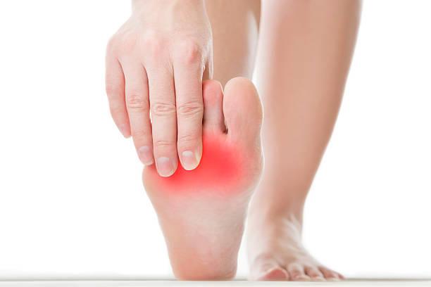 dolore nel piede femminile - callo foto e immagini stock