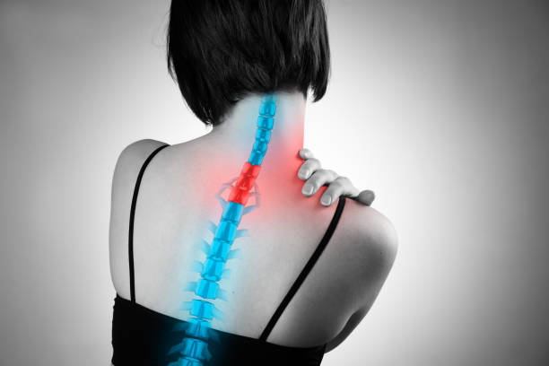 Pain in the spine, woman with backache, injury in the human back and neck Pain in the spine, woman with backache, injury in the human back and neck, black and white photo with highlighted skeleton human vertebra stock pictures, royalty-free photos & images