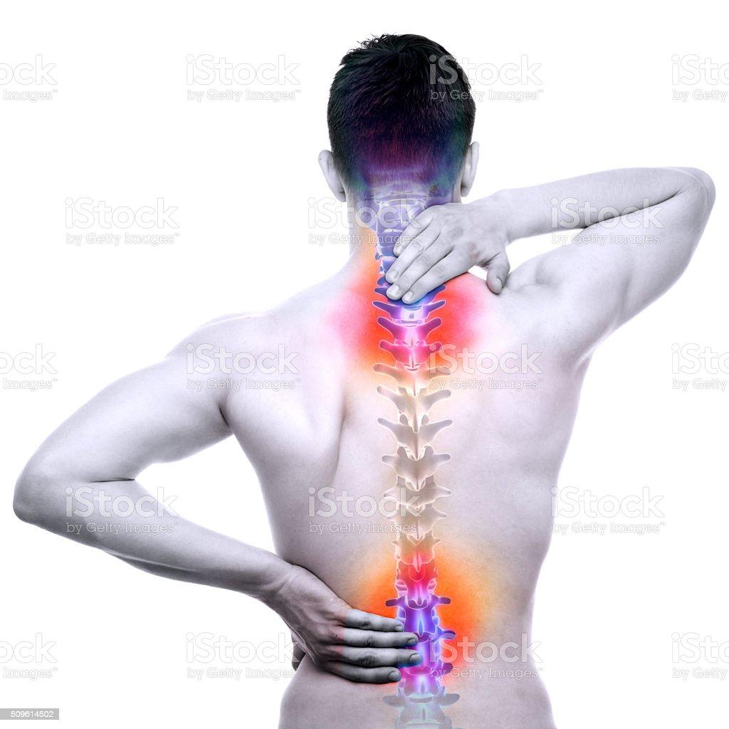 Rücken Schmerzen Männlich verletzt Rückgrat, isoliert auf weiss – Foto