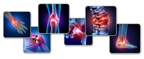 dor das articulações - articulação humana - fotografias e filmes do acervo