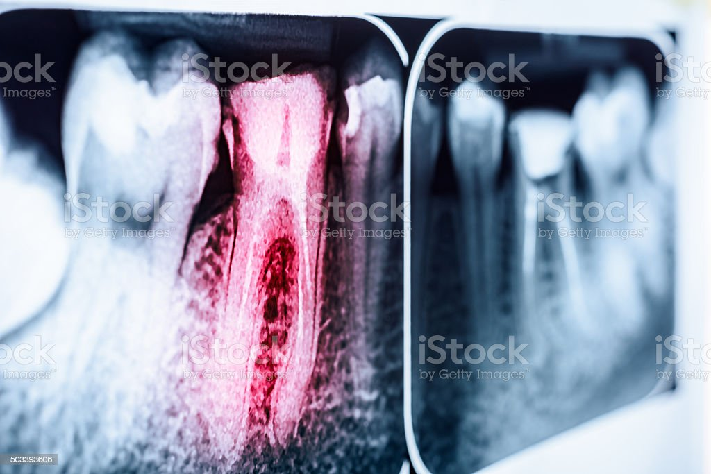 Pain Of Tooth Decay On X-Ray stock photo