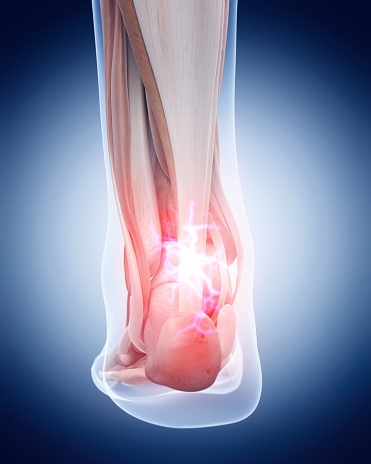 istock painful achilles tendon 486787084