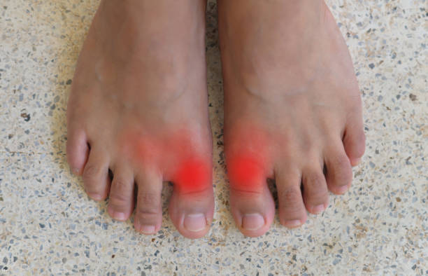 Painful and inflamed gout. Foot of gout patient.Close up Painful and inflamed gout. gout stock pictures, royalty-free photos & images