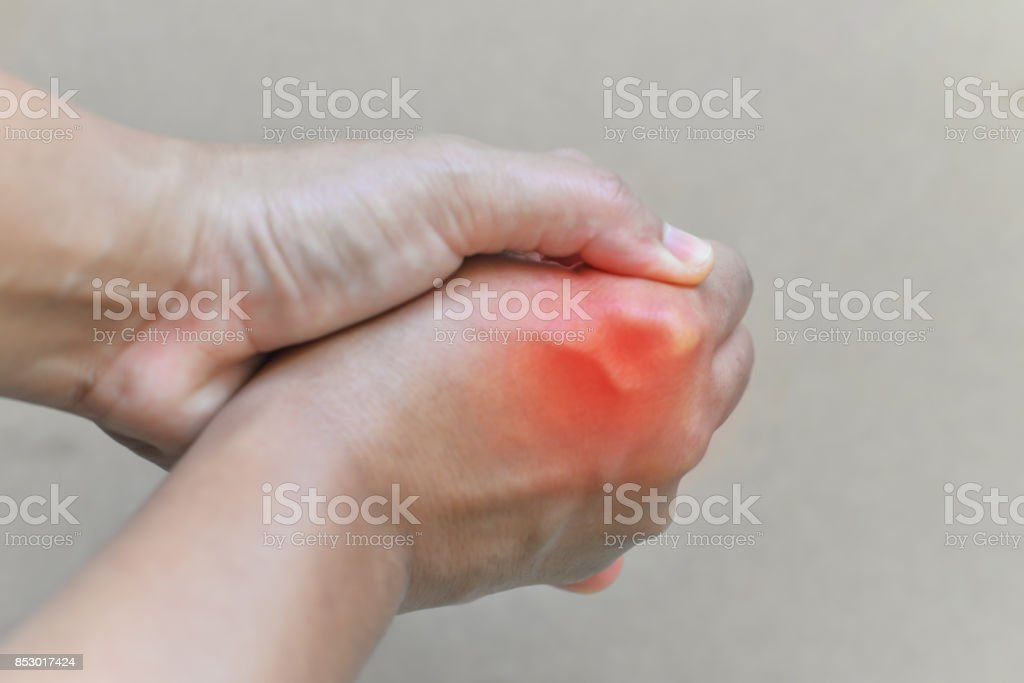 Painful and inflamed gout. stock photo