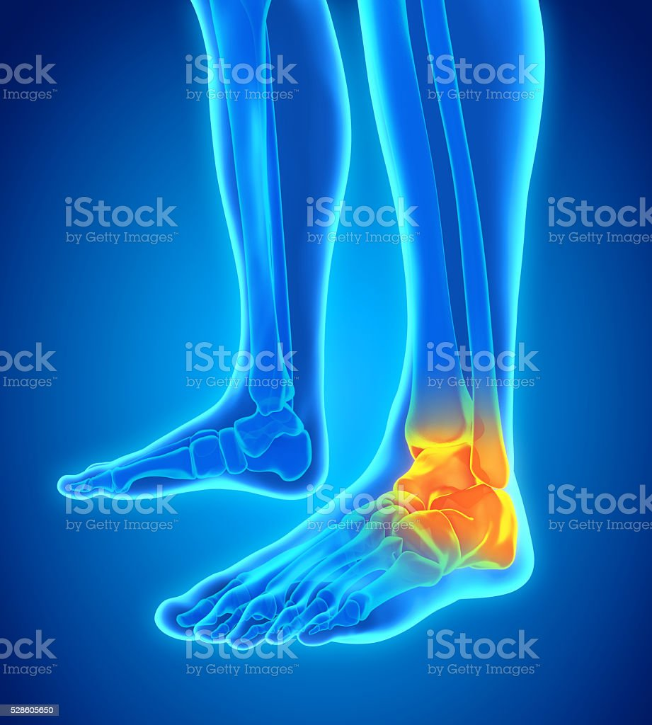 Painful Ankle Illustration stock photo