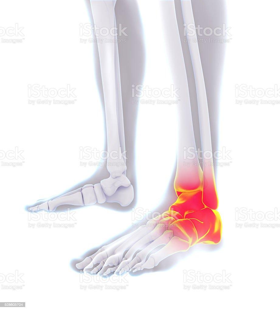 Schmerzende Knöchel Illustrationen - Stockfoto | iStock