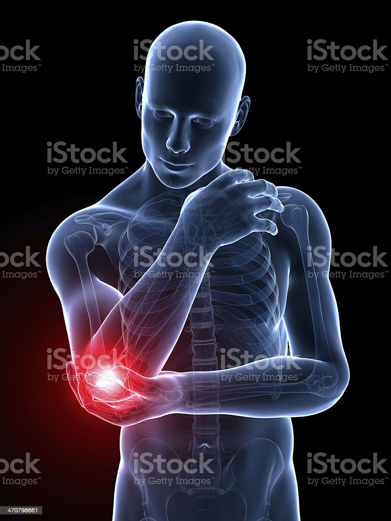 painful elbow joint stock photo