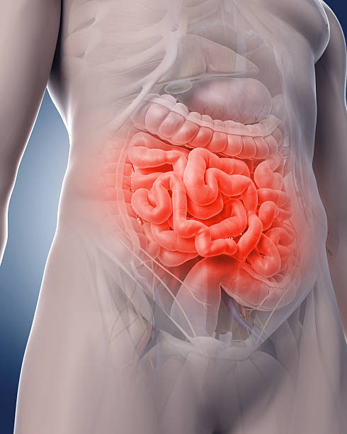 painful intestine - human intestine stock photos and pictures