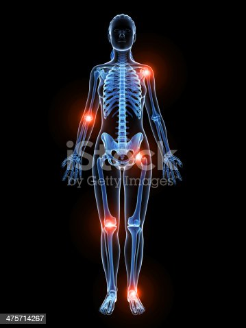 istock painful joints 475714267