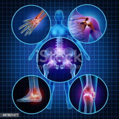 istock Painful Joints 497801477