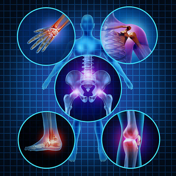Painful Joints Painful joints human anatomy concept with the body as a group of circular panels of sore areas as a pain and injury or arthritis illness symbol for health care and medical symptoms due to aging or sports and work injury. spine body part stock pictures, royalty-free photos & images