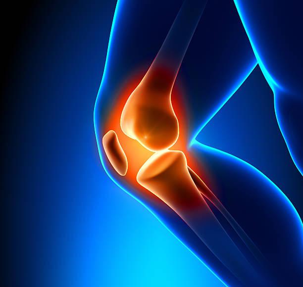painful knee close-up - knäskål bildbanksfoton och bilder