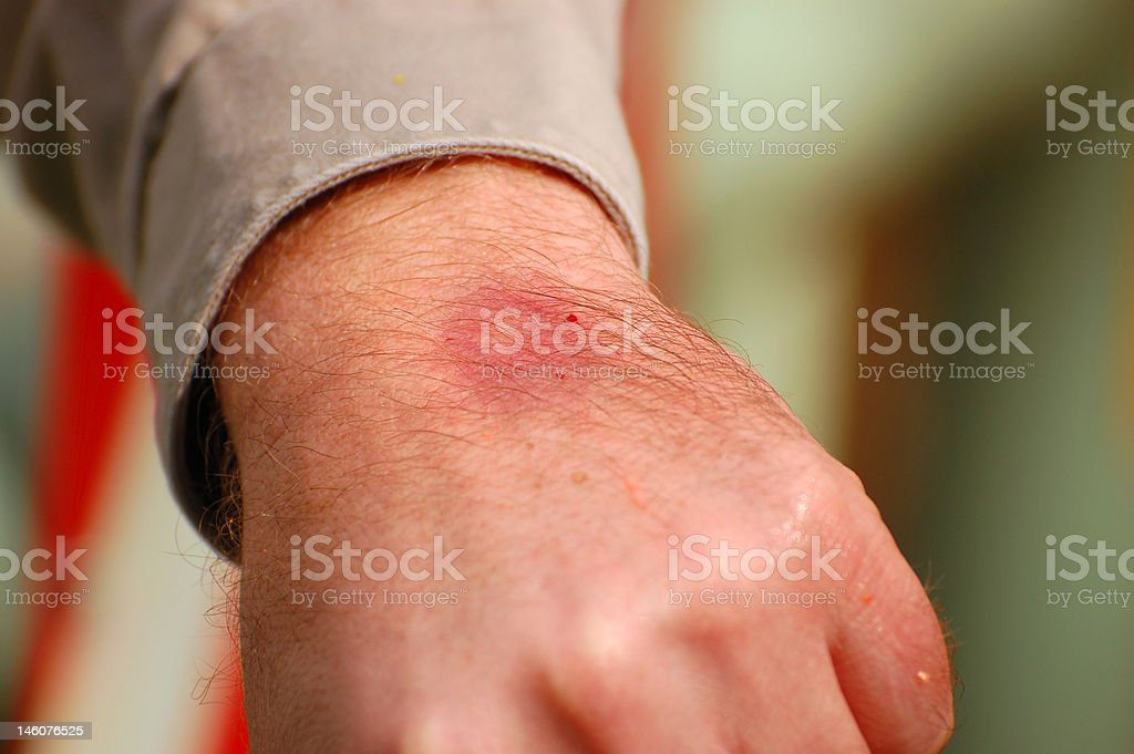 Painful Paintball Bruise Draws Blood stock photo