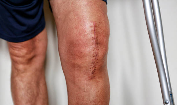 Painful scar after knee surgery Man on crutches after knee replacement surgery, stitches close up. scar stock pictures, royalty-free photos & images
