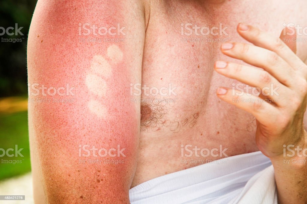 Painful sunburn marks on upper male arm stock photo