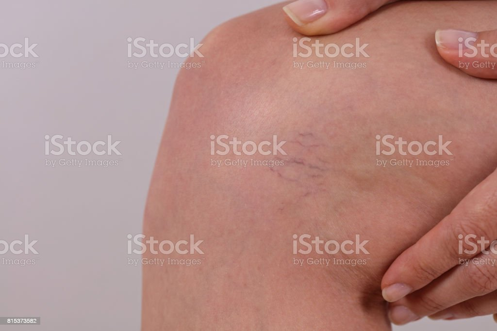 Painful varicose and spider veins on female leg close up stock photo