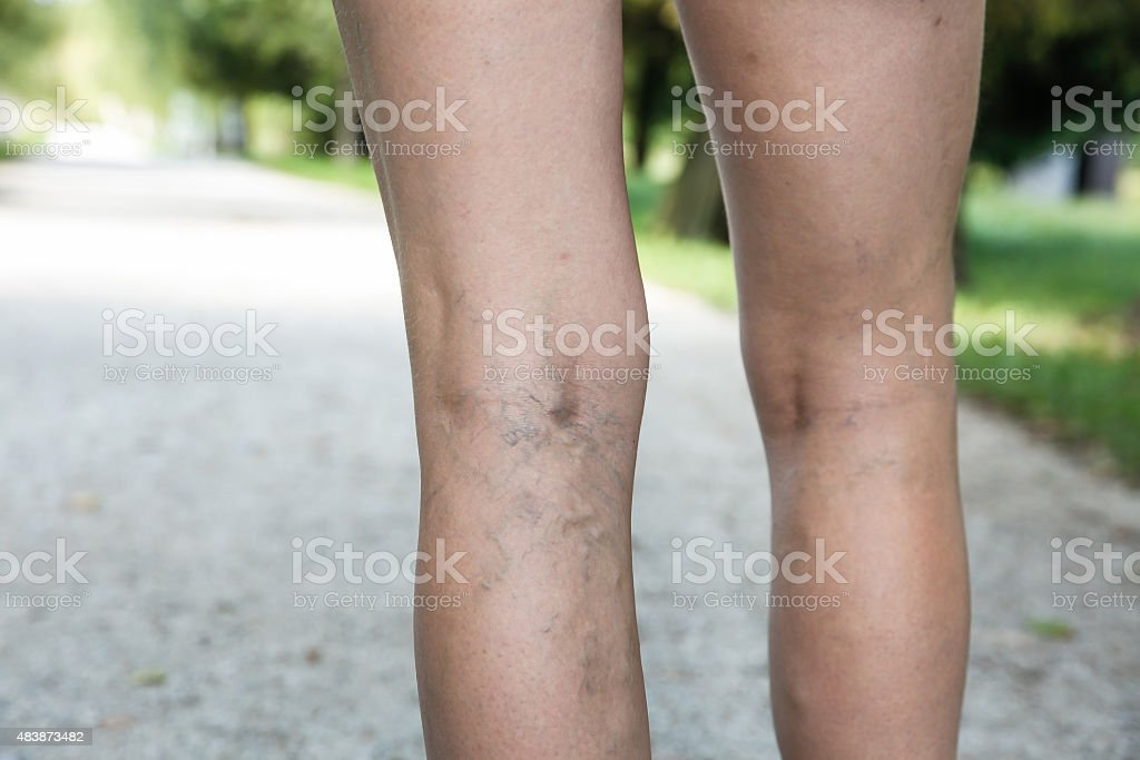 Painful varicose and spider veins on womans legs stock photo