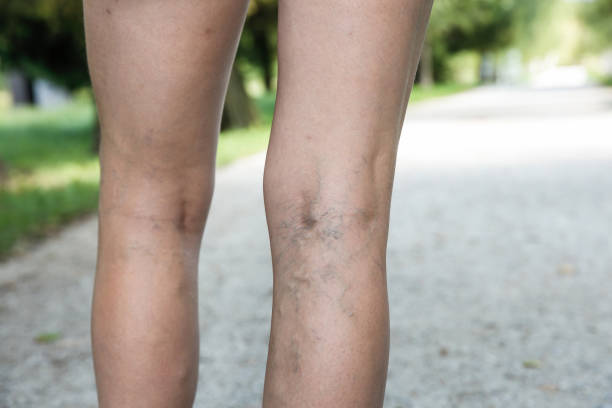 painful varicose and spider veins on womans legs - human limb stock pictures, royalty-free photos & images