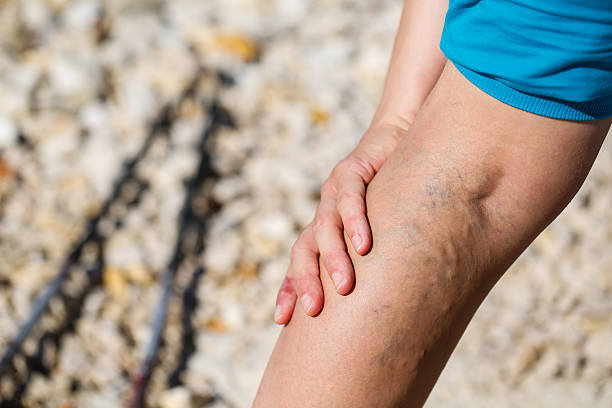 painful varicose veins - bloedvat stockfoto's en -beelden
