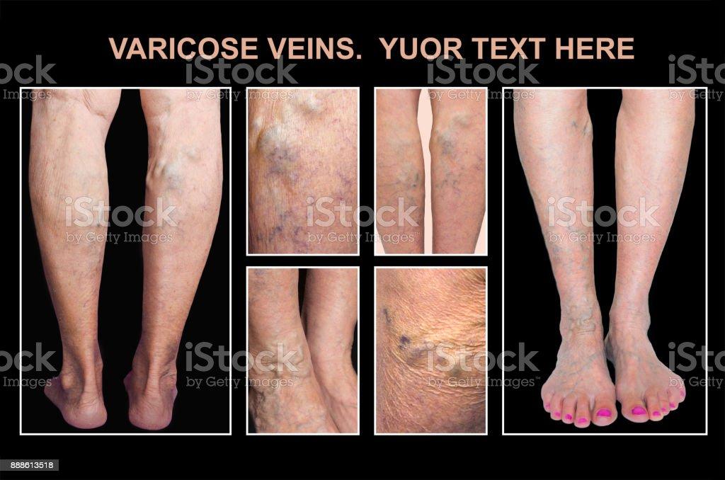 se usucă pielea pe picioare în varicoză