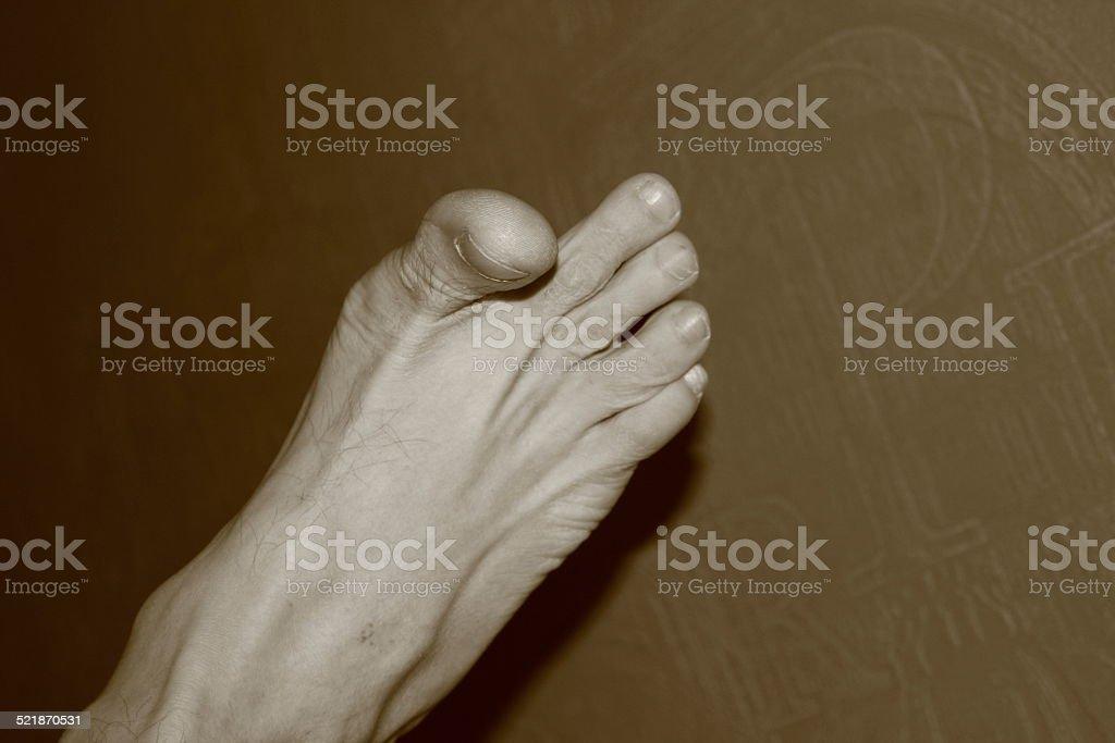 Pale leg bursting with fingers stock photo