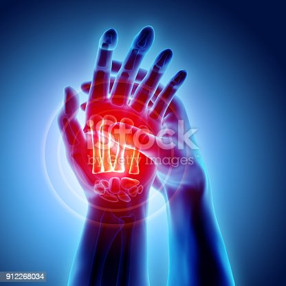 istock Palm painful - skeleton x-ray, Medical concept. 912268034