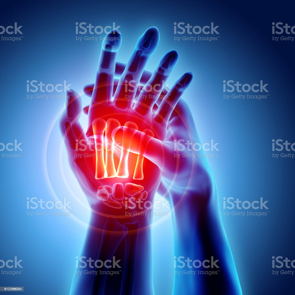 Palm painful - skeleton x-ray, Medical concept. – zdjęcie