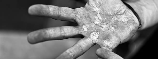 palms with calluses. blisters on the injured hands from manual work. hard work concept. - callo foto e immagini stock