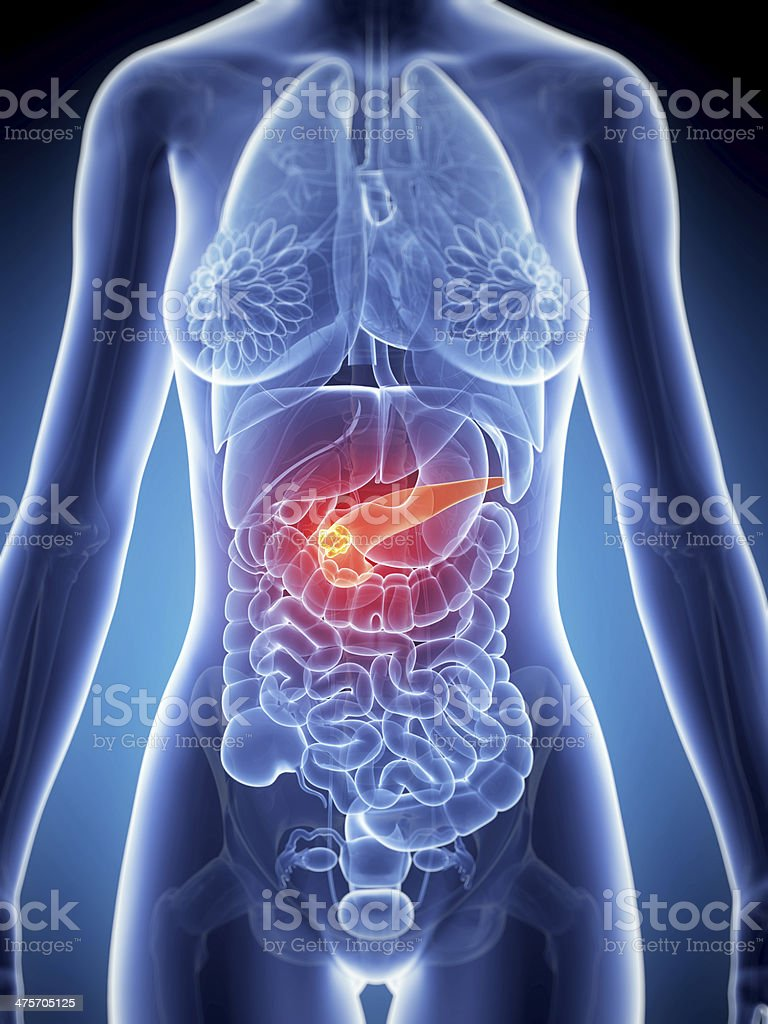 pancreas cancer royalty-free stock photo