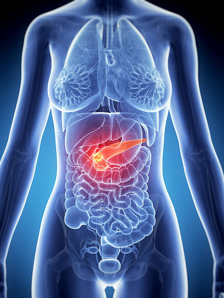 pancreas cancer stock photo