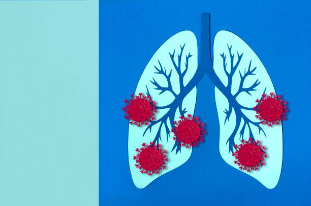 Pandemic covid-19. Damage to lungs by coronavirus stock photo