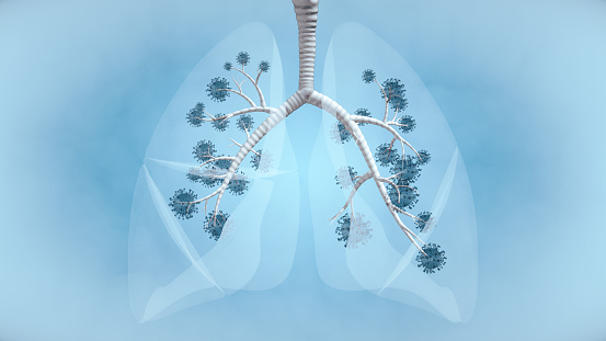Pandemic Illness in Lung