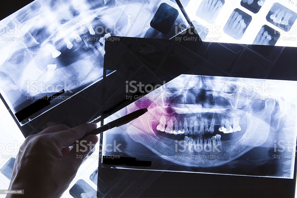 Panoramic dental X-Ray film for dentist stock photo
